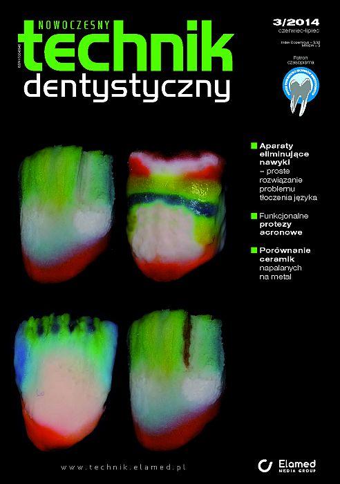 Nowoczesny Technik Dentystyczny wydanie nr 3/2014