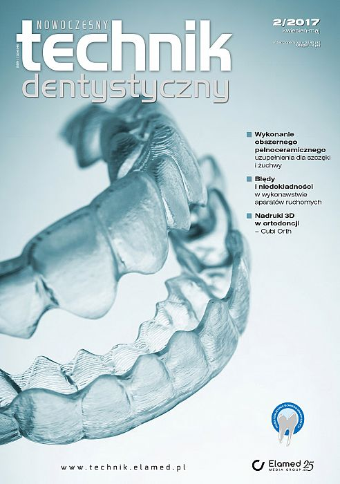 Nowoczesny Technik Dentystyczny wydanie nr 2/2017