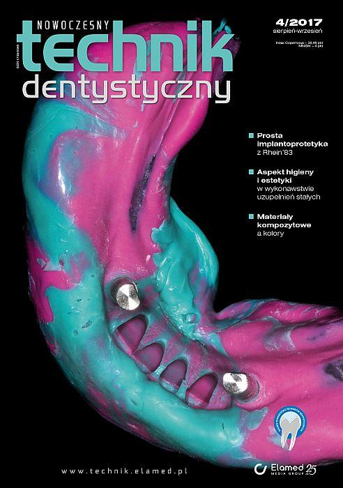 Nowoczesny Technik Dentystyczny wydanie nr 4/2017
