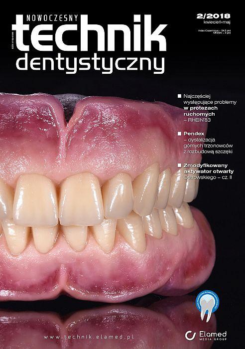Nowoczesny Technik Dentystyczny wydanie nr 2/2018