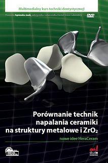 Porównanie technik napalania ceramiki na struktury metalowe i ZrO₂