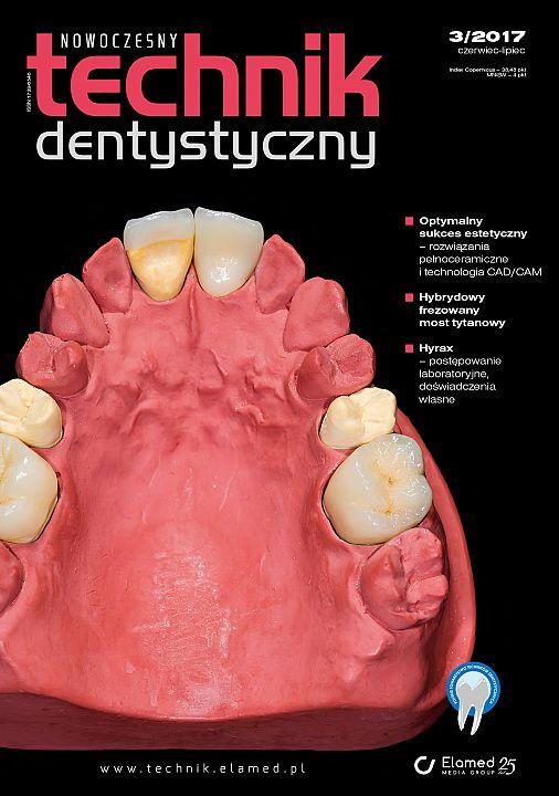 Nowoczesny Technik Dentystyczny wydanie nr 3/2017