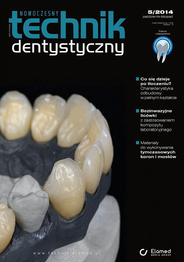 Nowoczesny Technik Dentystyczny wydanie nr 5/2014