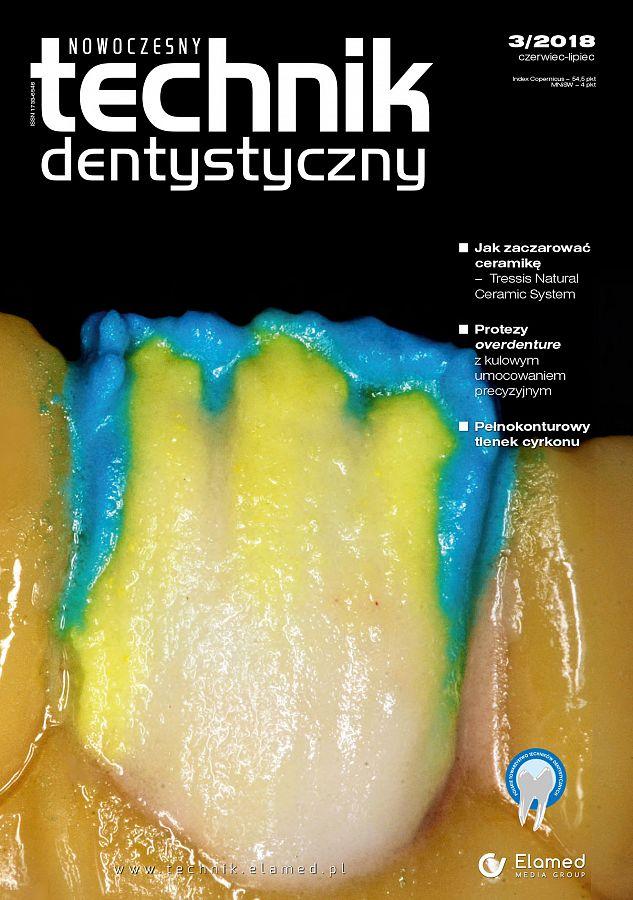 Nowoczesny Technik Dentystyczny wydanie nr 3/2018