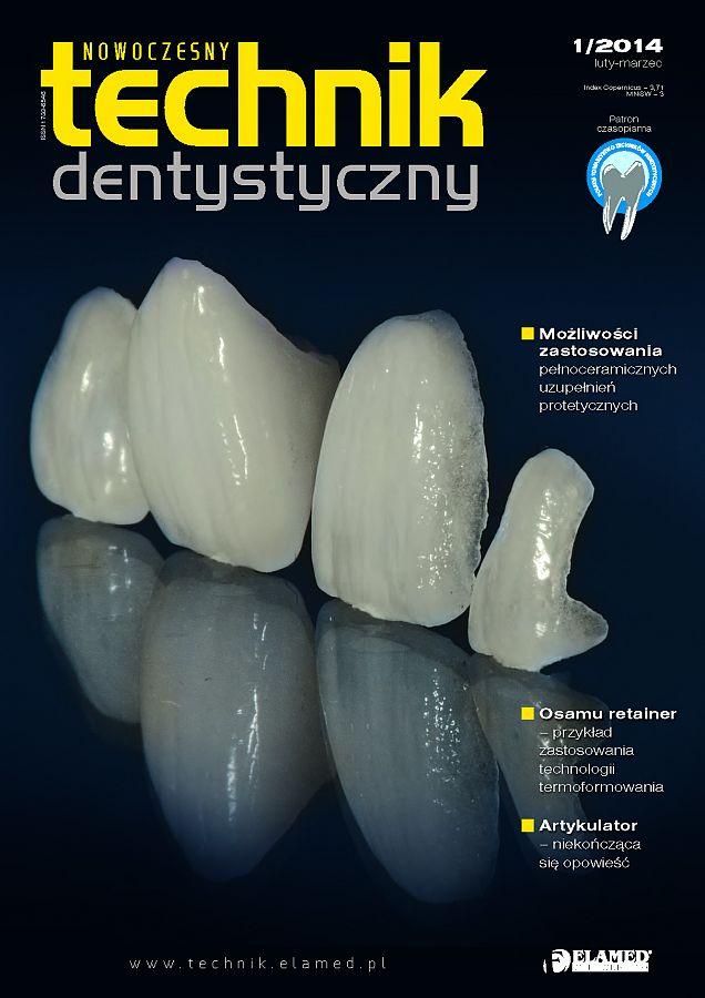 Nowoczesny Technik Dentystyczny wydanie nr 1/2014
